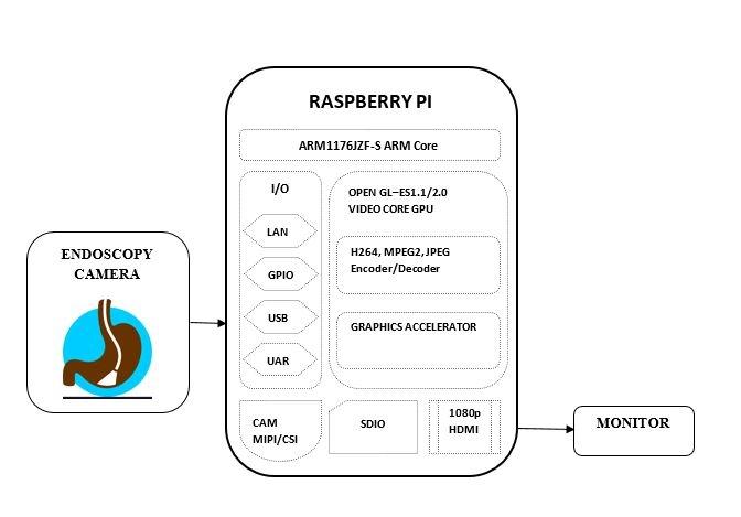 Low-cost Endoscopy using Raspberry Pi