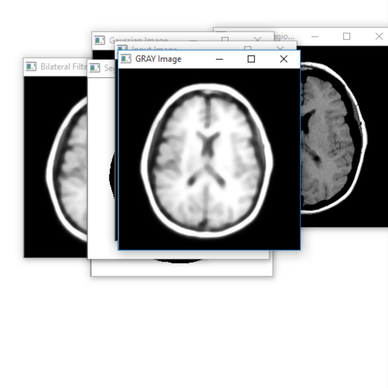 Brain Tumor Segmentation with OpenCV, Python