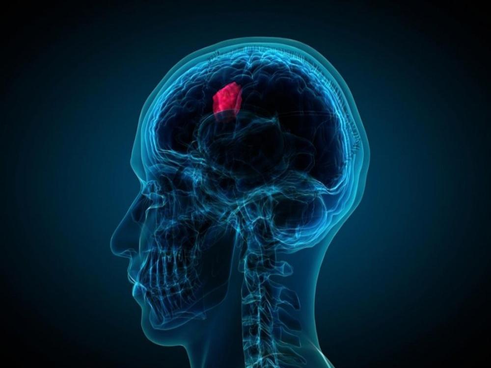 Brain Tumor Segmentation using Back Propagation Neural Network