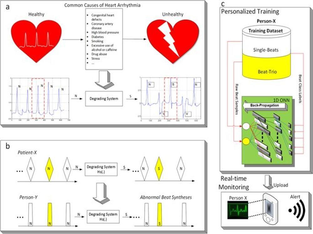 Cardiac Arrhythmia detection  using  Deep Learning