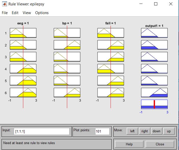 Epilepsy Alert System using EEG,Accelerometer and Blood Pressure sensor