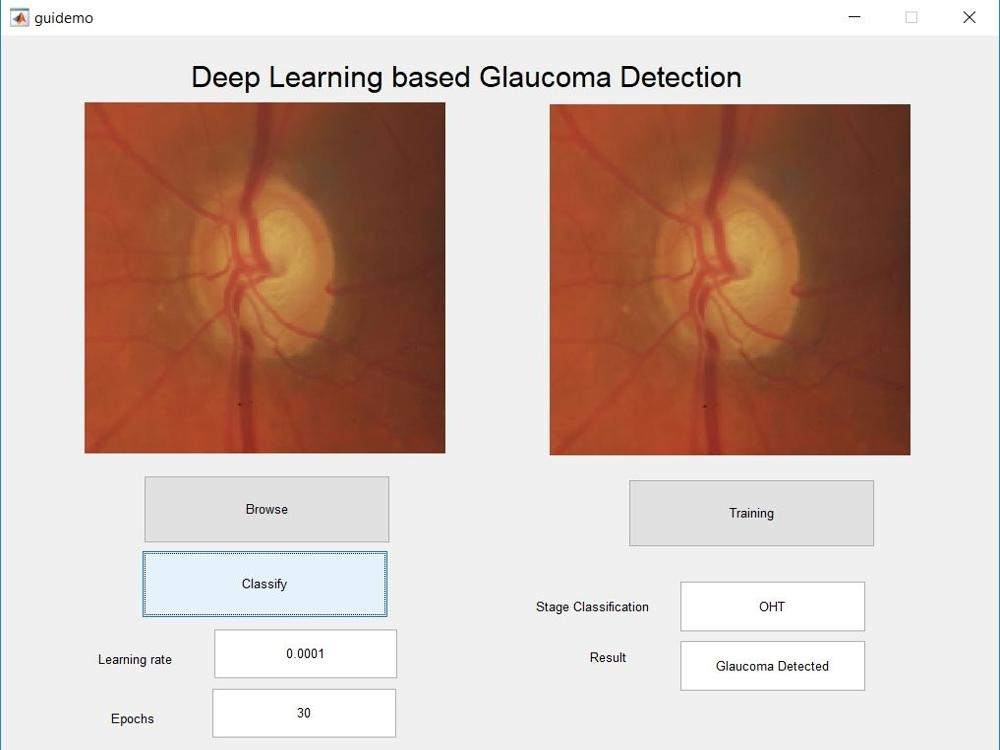 Glaucoma Detection using Deep Learning
