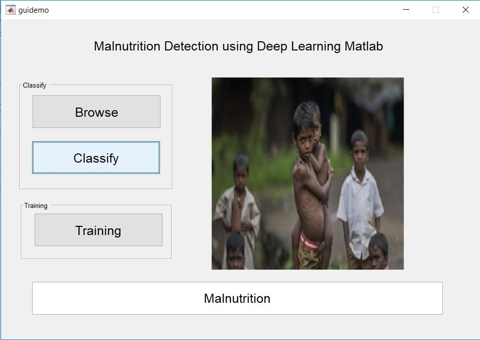 Malnutrition Detection using Deep Learning
