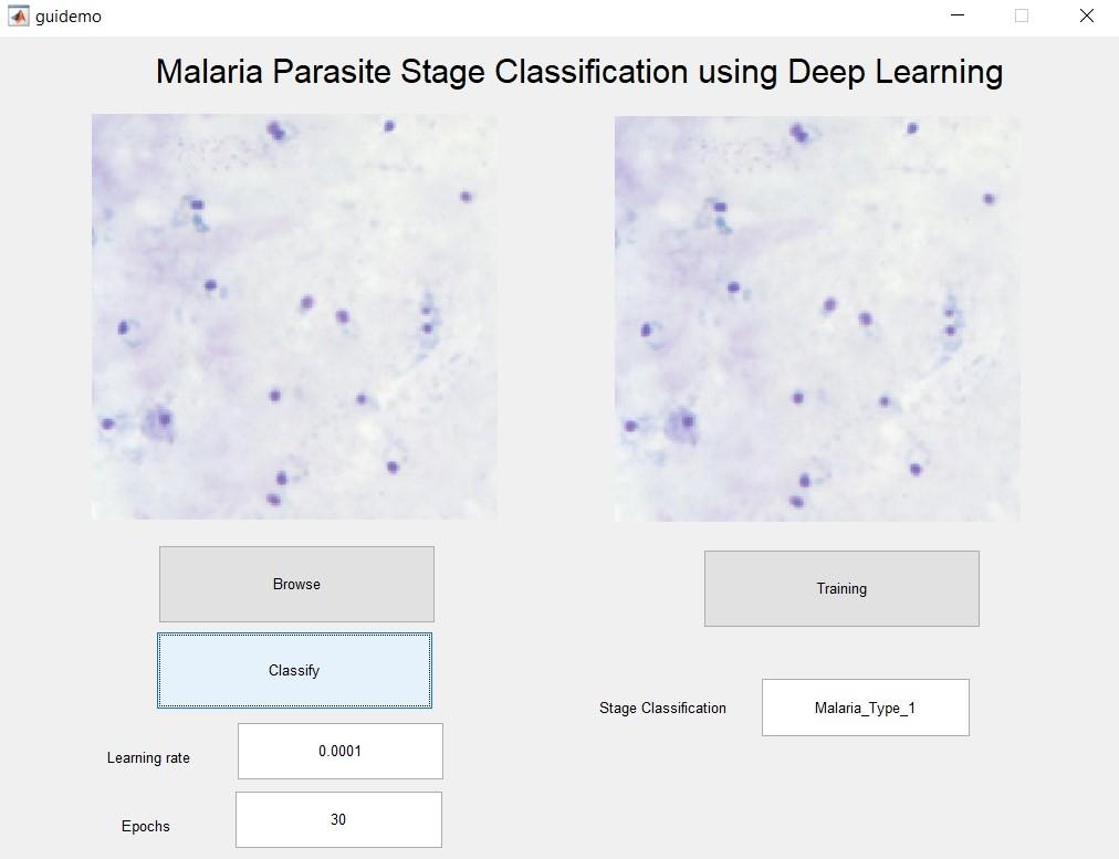 Malaria Parasite Classification using Deep Learning