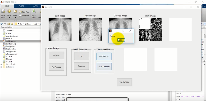 Tuberculosis Detection in XRAY Images using Matlab -Image Processing Project